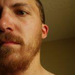 Beard: awesome. Neck: unruly.